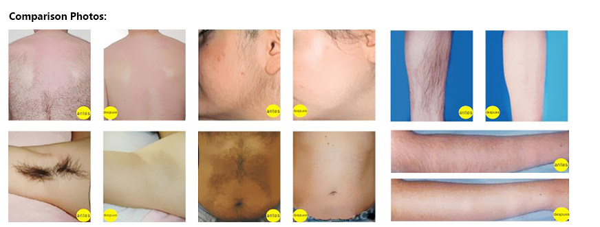 diode laser treatment before and after