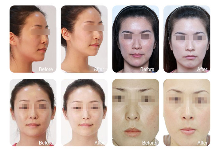 Hyperbaric Oxygen Facial Machine Before and After